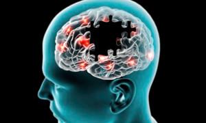 cerebro-alzhimer