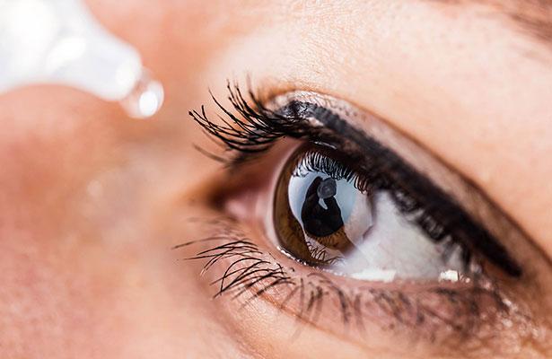 El síndrome de ojo seco aparece por la disminución de la producción de lágrimas o de su excesiva evaporación, y sus síntomas son dolor, enrojecimiento, sensación de cuerpo extraño y comezón.