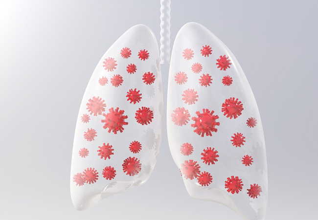 pulmonescovid